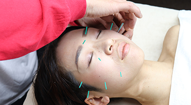 美顔鍼 / Facial acupuncture