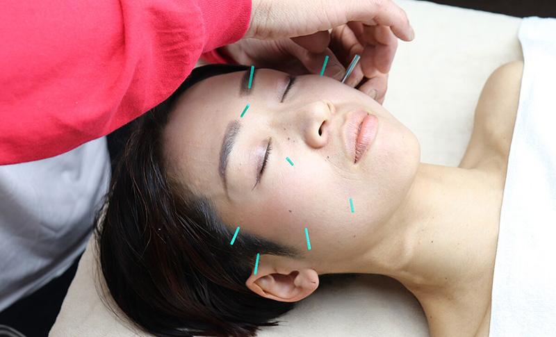美顔鍼の施術